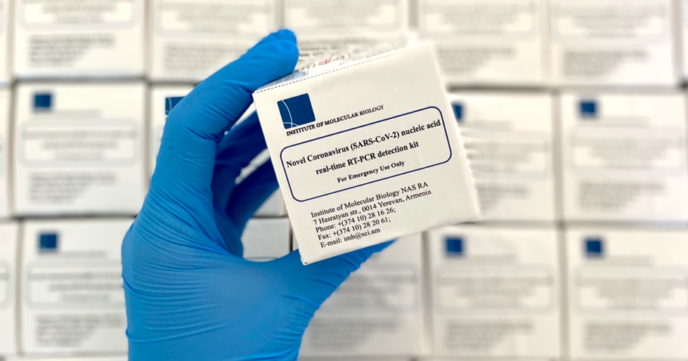 COVID 19 test kits developed by the IMB in Armenia
